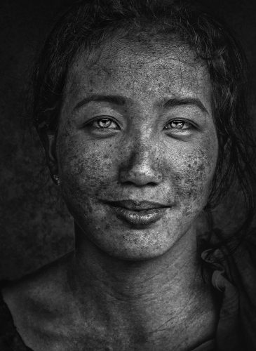 Poverty smile